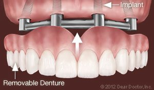 Support Removable Dentures